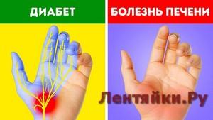 12 Проблем со Здоровьем, о Которых Расскажут Руки