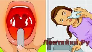 25 Натуральных Способов Вылечить Распространенные Инфекции Без Лекарств